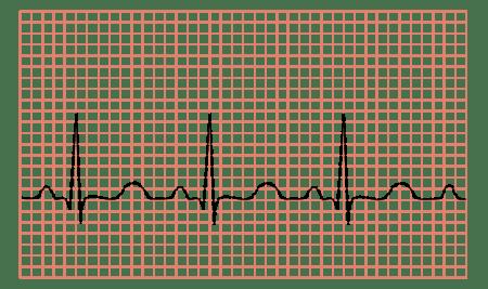 hipertenzijos atjaunėjimo priežastys