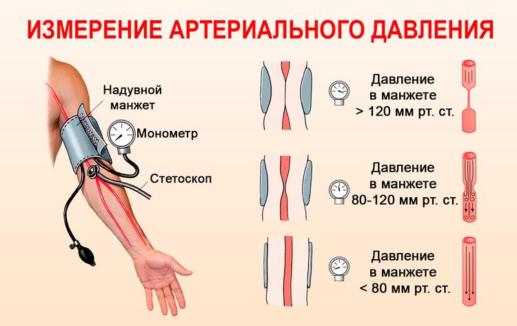hipotenzija su amžiumi virsta hipertenzija
