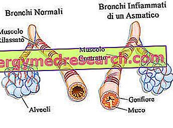 Diferencinė lėtinio bronchito diagnostika | mul.lt