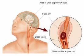 hipertenzijos po išeminio insulto gydymas