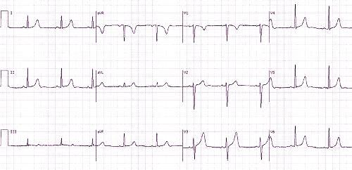 Pagrindiniai kairiojo skilvelio hipertrofijos požymiai EKG
