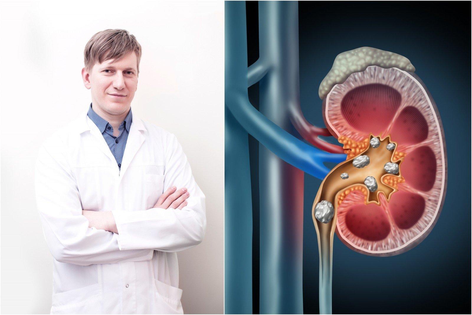 inkstų hipertenzijos simptomas