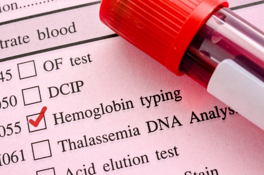 kaip sumažinti hemoglobino kiekį esant hipertenzijai