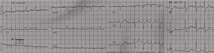 hipertenzijos šifras