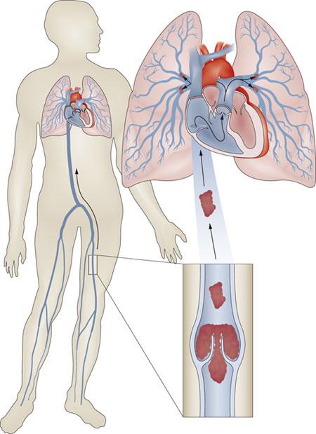 plaučių kraujotakos hipertenzijos priežastys)