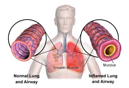 hipertenzija ir lėtinis bronchitas kokios hipertenzijos stadijos