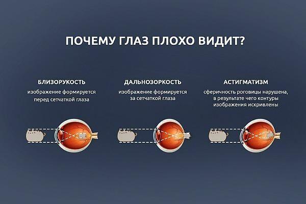 operacija kataraktai pašalinti dėl hipertenzijos)