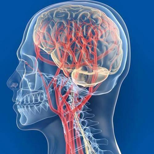smegenų sukrėtimas hipertenzija