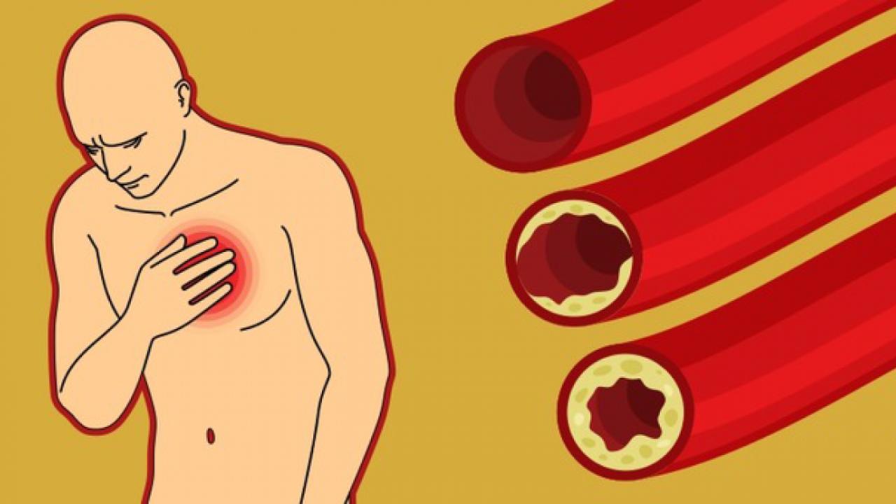 Kaip valyti kraujagysles nuo kraujo krešulių, o ne klijuoti pleistrus