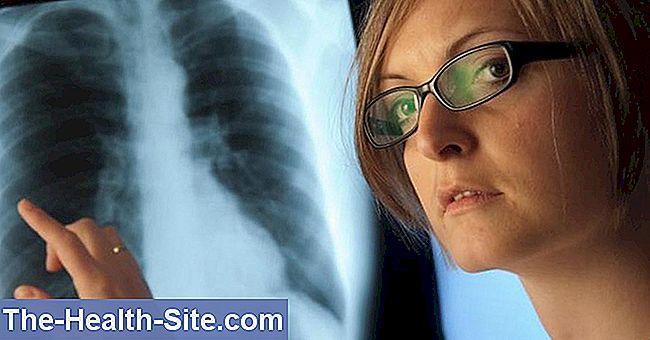 kaip gydyti plaučių hipertenziją)