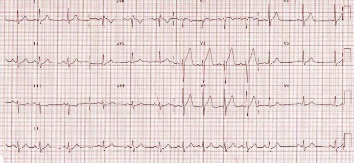 aritmija hipertenzijos fone
