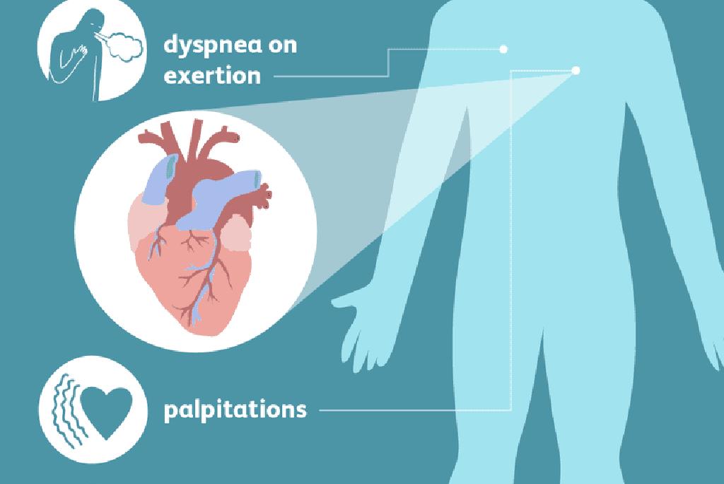 Širdies nepakankamumas. Simptomai, priežastys, eiga ir gydymas - mul.lt