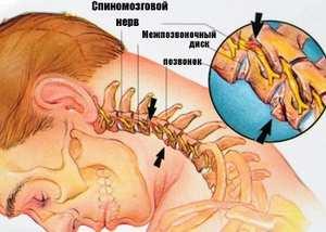 Tepalai ir geliai tromboflebitui - Hipertenzija