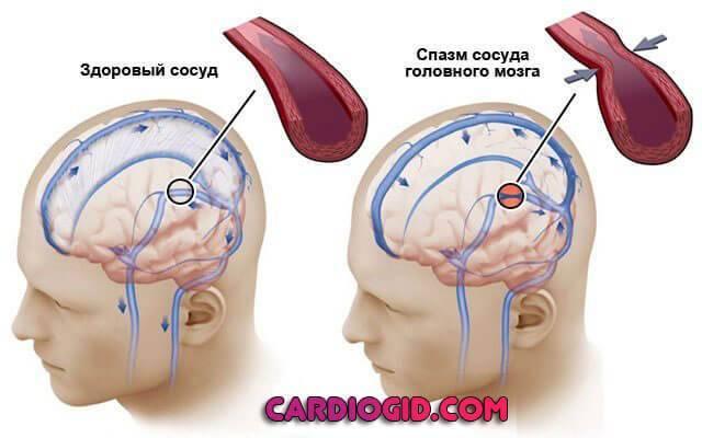normalus kraujo spaudimas sergant hipertenzija, koks slėgis gali būti žemas