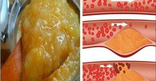 hipertenzija maistas
