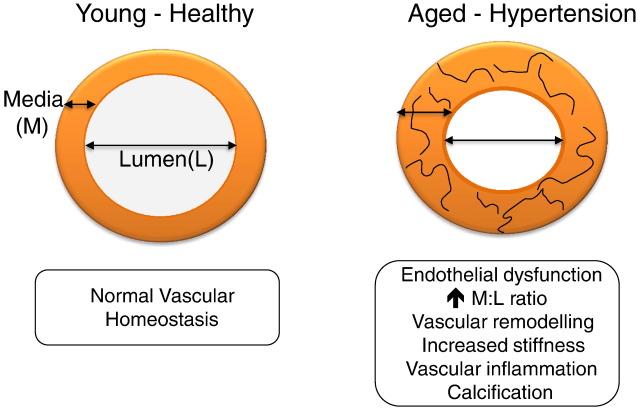 hipertenzija 47 m didelis hemoglobinas su hipertenzija