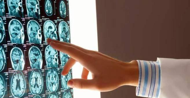 hipertenzija smegenų kraujavimas