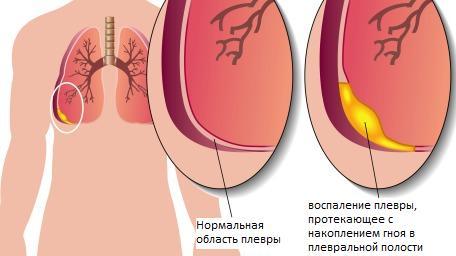 Platifilino hipertenzija