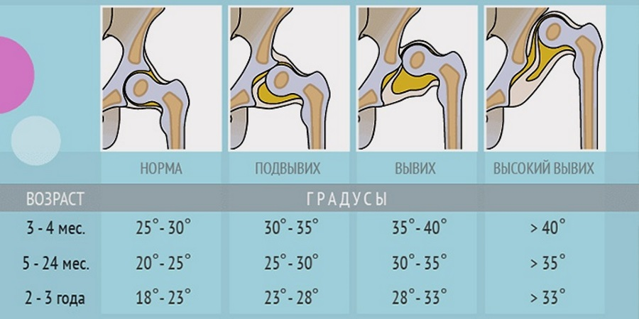 rankos sustingsta kojos hipertenzija)