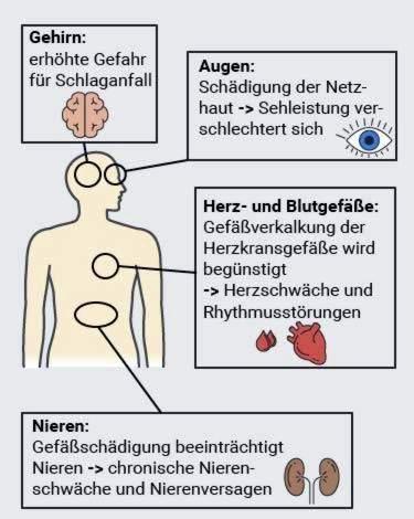 hipertenzija ir tiksliniai organai