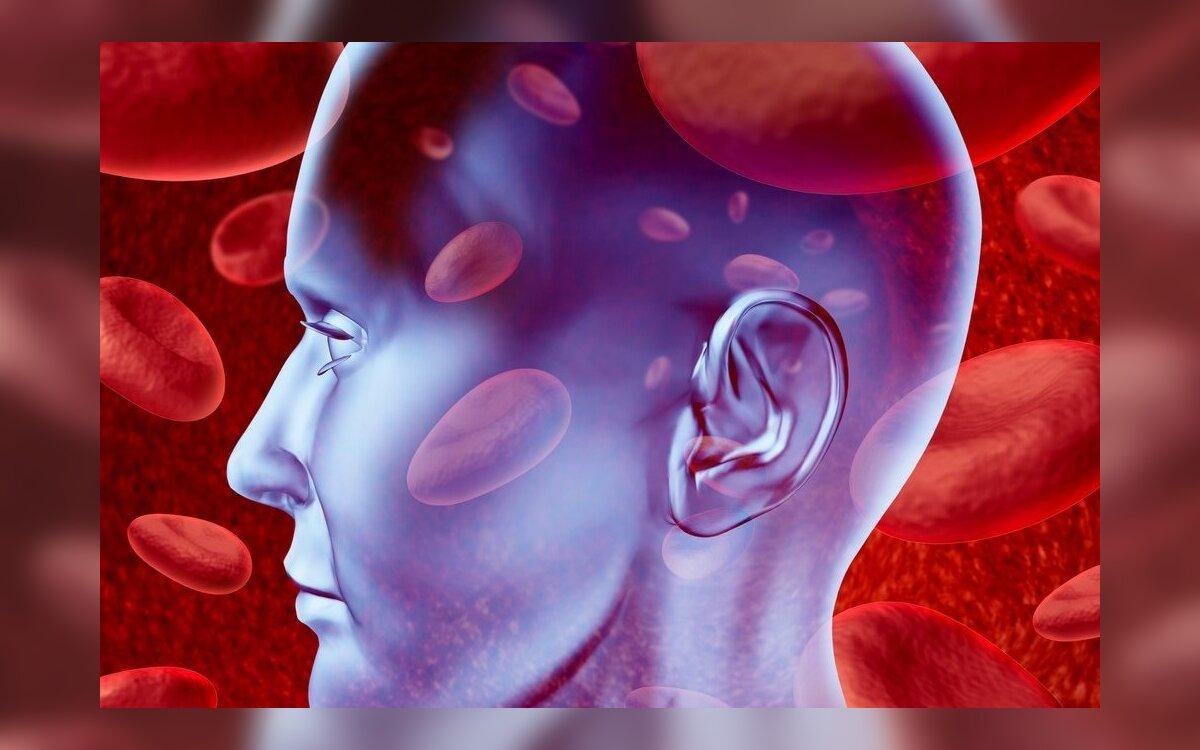 insulto nuo hipertenzijos statistika kaip žmonės serga hipertenzija