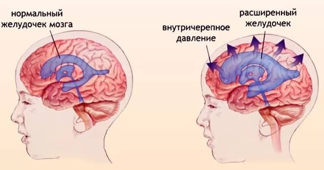 intrakranijinis slėgis esant hipertenzijai)
