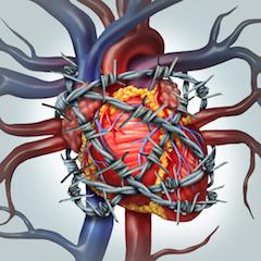 Santykinio širdies nuobodumo ribų nustatymas