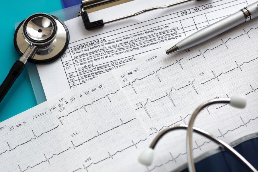 Šypsosi ant kardiogramos: kas tai yra, kokios yra priežastys, veiksmų etapai