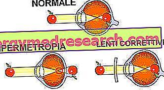 trumparegystė ir hipertenzija)