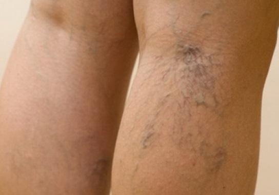 Kojų venų varikozė: simptomai ir gydymas